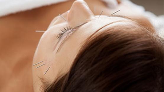 kosmeticka_akupunktura